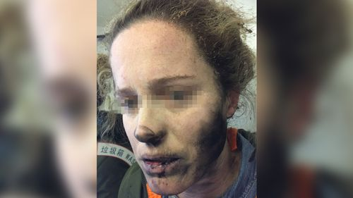 She had been sleeping on the plane when she heard a loud explosion. (ATSB)