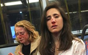 Five arrested after UK women left battered and bloody in homophobic bus attack