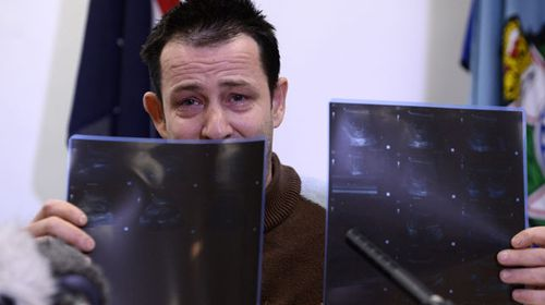 Cory Ryther clutches an ultrasound of his unborn child. (AAP)