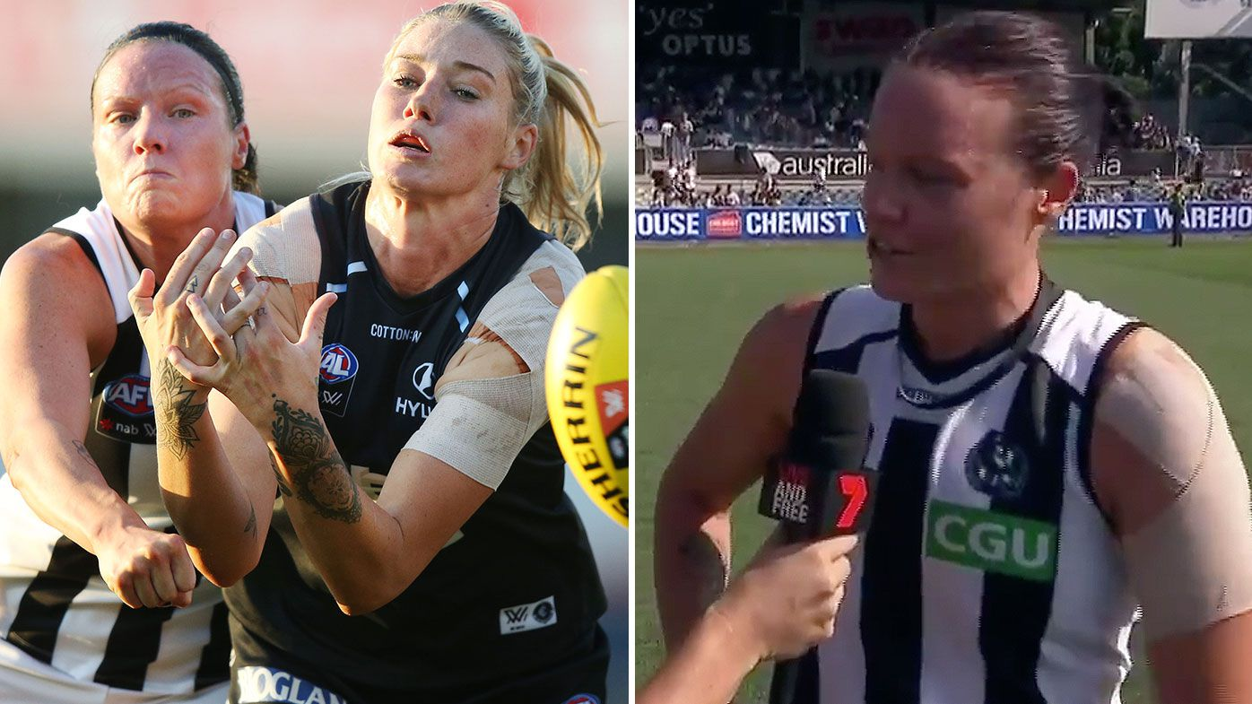Magpies score first AFLW win over Blues as Stacey Livingstone wins Tayla Harris battle