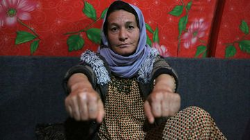 Baseh Hammo shows the burns on her hands carried out by an Albanian who forced her to put her hands on hot asphalt, then stomped on them with his boots.