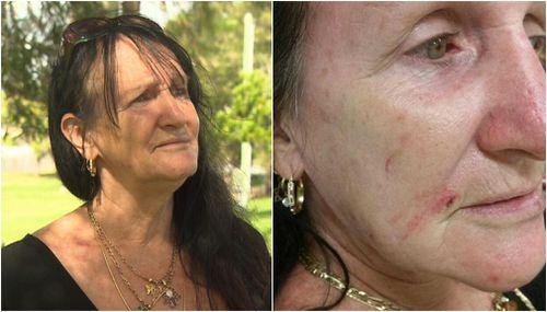 Southport woman Karen McGlinchen suffered minor injures. (9NEWS)