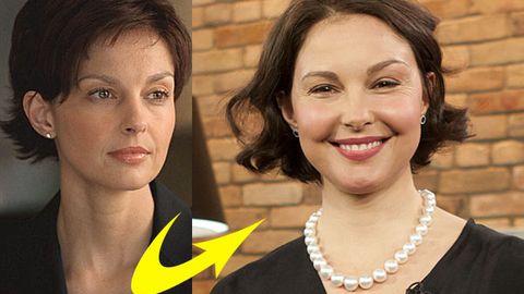 Ashley Judd's puffy face