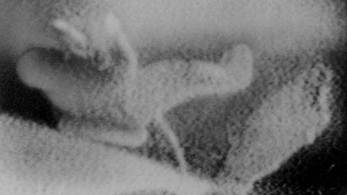 Soviet cosmonaut Alexei Leonov making the first spacewalk in 1965.