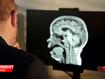 Dementia: 'How can it happen to children?'