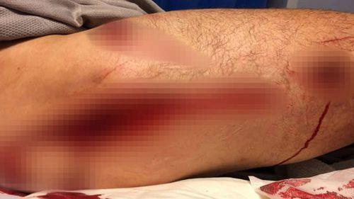 WA shark attack survivor Phil Mummert