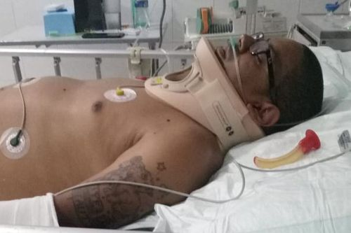 Mikey Lythcott needed multiple surgeries after the scooter accident in Bali.
