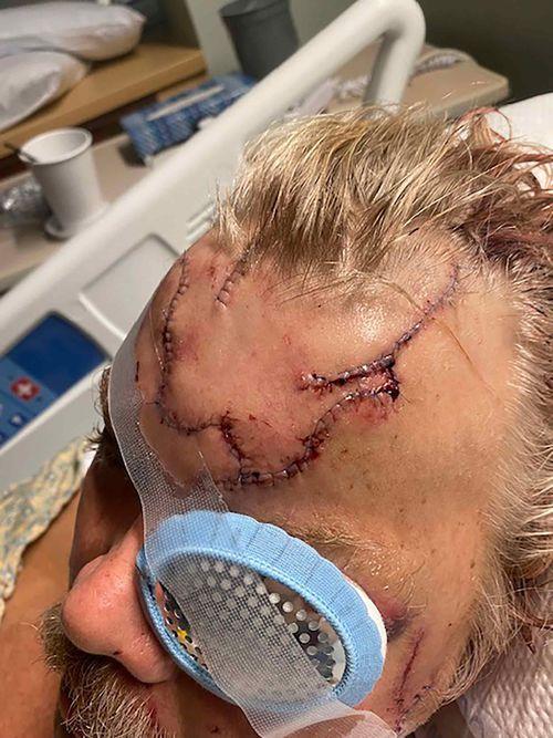Allen Minish was mauled by a bear in Alaska.