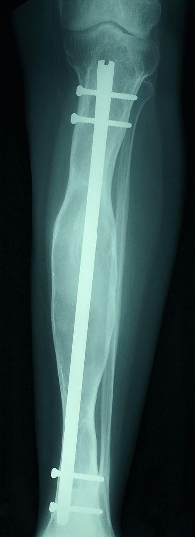 Metal Rod in Leg X-Ray