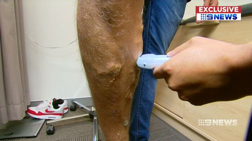 Varicose veins are the result of faulty valves within veins, causing the blood to pool. Picture: 9NEWS