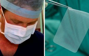 'Major catastrophe': Sydney surgeon calls for hernia mesh ban