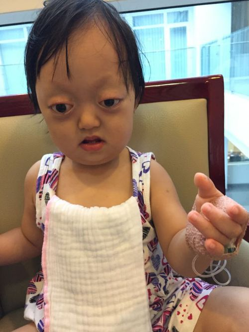 Lam suffers from Crouzon Syndrome, which affects the development of the skull. Picture: Supplied