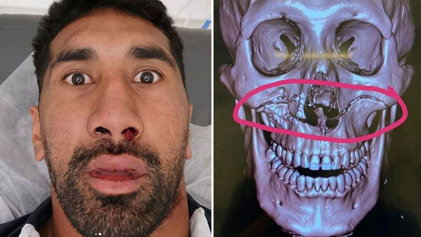 Sia Soliola eating through a straw after horrific facial fracture