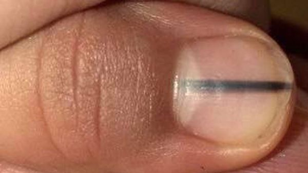 Finger nail melanoma/Facebook