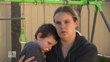 A four-year-old South Australian boy is recovering after a dog attack.