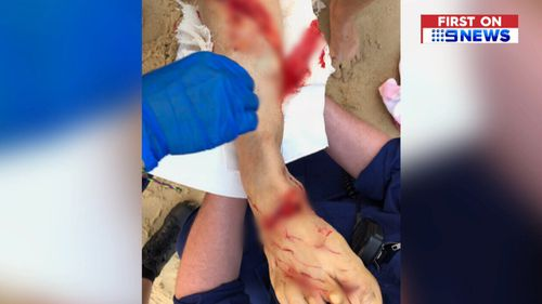 She suffered deep cuts to her right lower leg. (9NEWS)