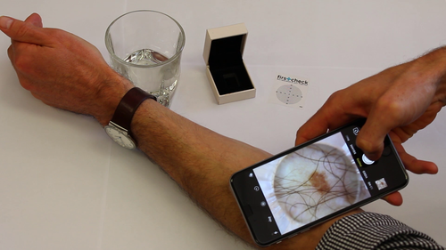 Firstcheck is the first ever skin cancer app allowing checks to be done in the comfort of your own home.
