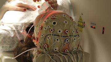 A patient is examined during a scan session at the University Hospital in Liege, Belgium, in 2009. Belgium's Rom Houben was misdiagnosed for 23 years as being in a coma until a doctor at Liege University discovered three years ago that Houben's brain was still functioning. Houben was diagnosed as being in a vegetative state following a car crash in 1983.