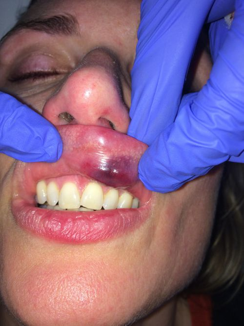 Dr Proudlove suffered severe cuts to her lip and the inside of her mouth.
