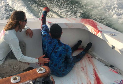 A spearfisherman was lucky enough to be rescued by a boat full of nurses after he was bitten by a shark off the coast of Florida.