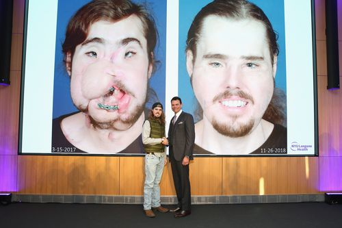 Cameron stands with his doctor in front of before and after surgery images shown to the audience. The surgery, 11 months ago, took 25 hours  to complete.