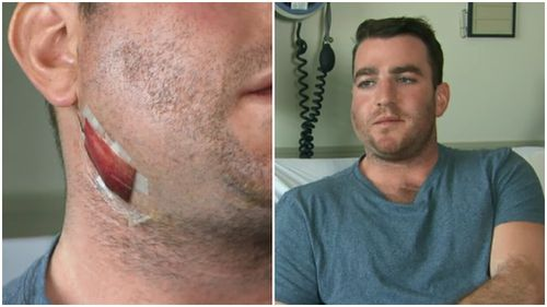 Mr Derham suffered a broken jaw in the incident. (9NEWS)