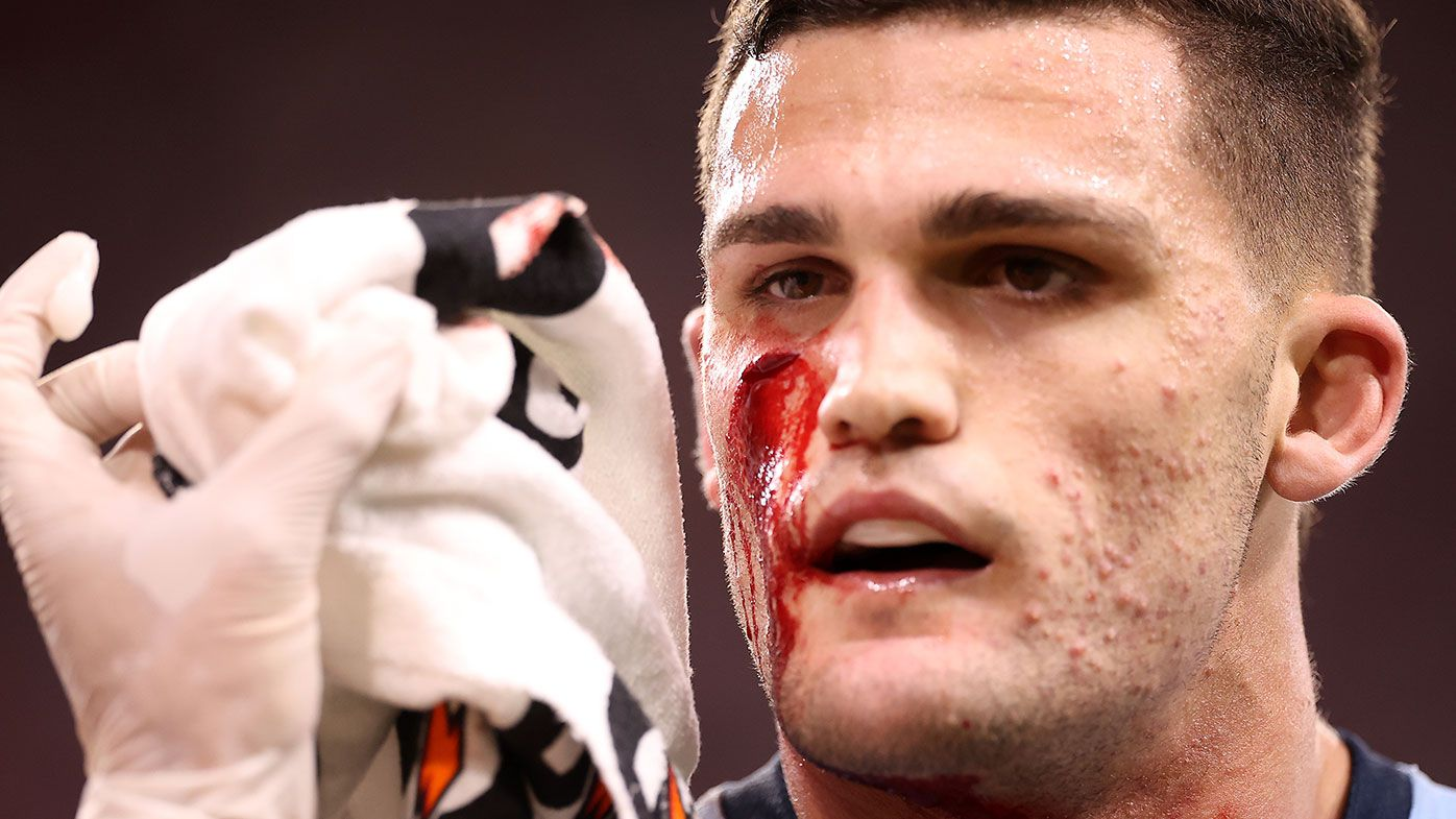 Controversy as referee fails to send 'bloodied' NSW halfback Nathan Cleary from field
