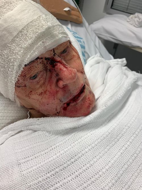 Patricia was beaten when she walked in on an intruder at her North Turramurra retirement village home.