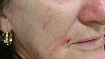 Mum bashed with club for 'driving too close' to neighbours home