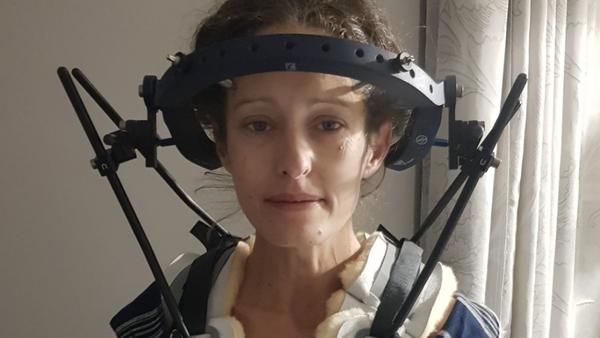 Woman hypermobility neck brace awaiting life-saving surgery