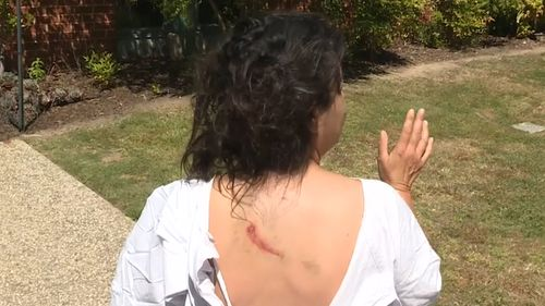 Dina underwent surgery for her leg wounds and required 25 stitches for facial injuries, but said she didn't blame the kangaroo, aware her dog caused the attack.