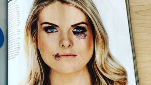 NRL Footy Show host Erin Molan fights domestic violence with confronting photo