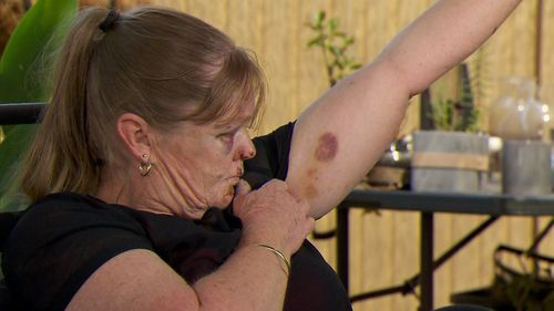 The grandmother suffered two black eyes and horrific bruising on her body.