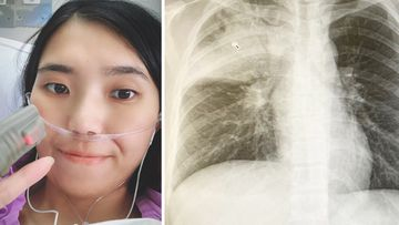 Mia Chen noticed no symptoms of her lung cancer until developing a persistent cough.
