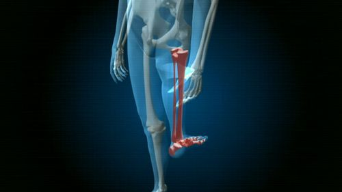 Rotationplasty involves rotating the foot 180 degrees, bringing the heel to the front. (9NEWS)