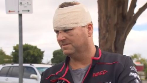 """""""It bloody hurt,"""" the 45-year-old said of the alleged attack. (Supplied)"""