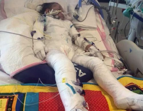 Doctors were forced to treat Avery like a burns victim, covering her from head to toe in bandages. (Photo: Supplied).