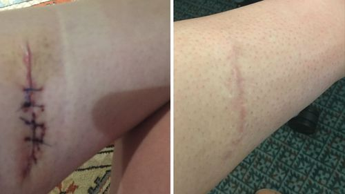 Georgia's scar three days after surgery (left) and one year later (right). (Image courtesy of Mary Davison)