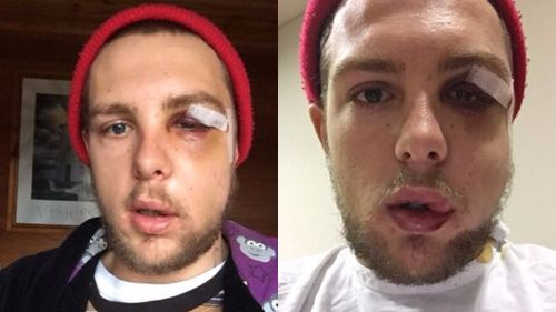 Police seek pair who filmed man being hit by security guard outside hotel on Mornington Peninsula
