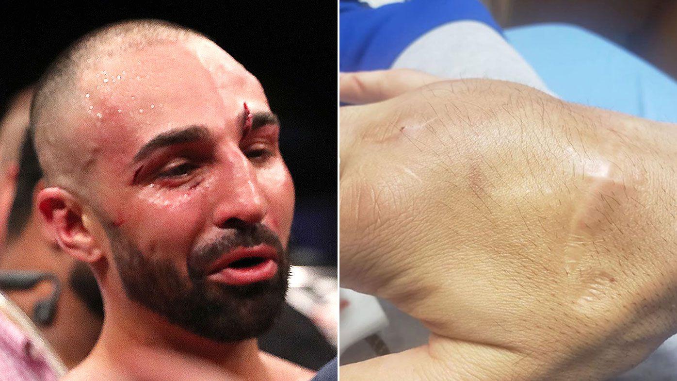 Paulie Malignaggi reveals brutal cost of fighting bare knuckle against Artem Lobov