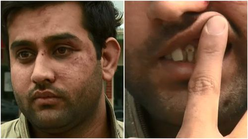 Melbourne cabbie suffers broken teeth after teens allegedly refused to pay fare