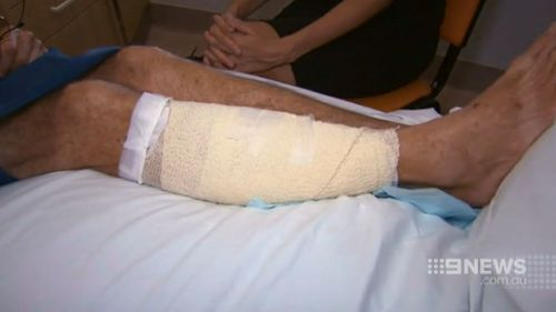 He was left with four wounds in his right leg. (9NEWS)