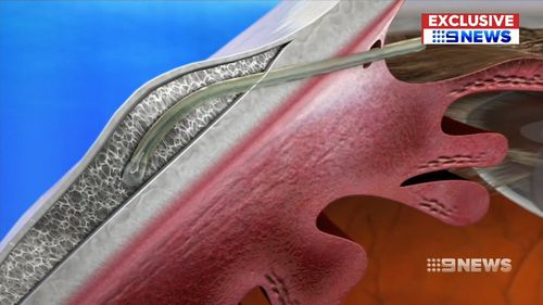 the XEN Gel implant will drain excess fluid out of glaucoma affected eyes.