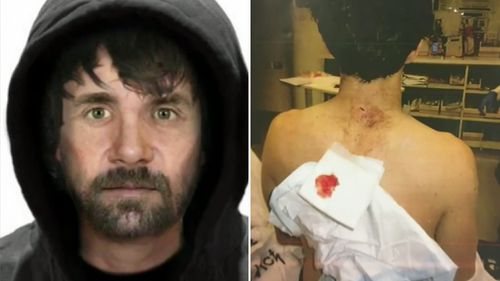 Hamish Brooke was stabbed by a stranger. (9NEWS)