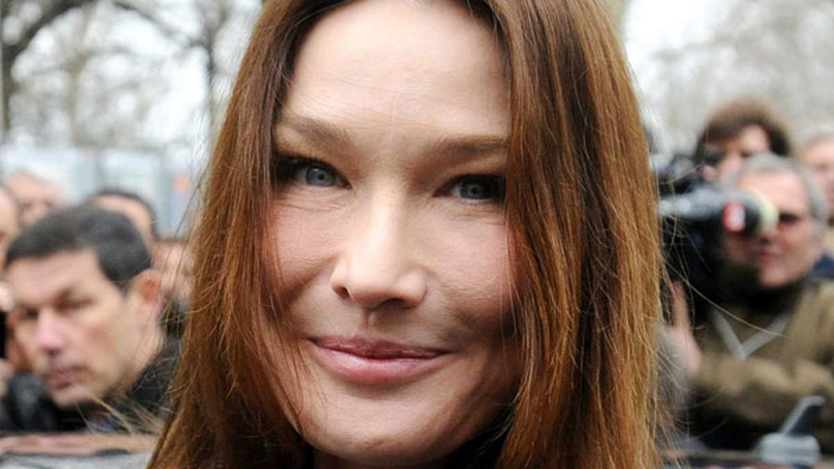 Botox Addict Carla Bruni S Face Is Freaky 9celebrity