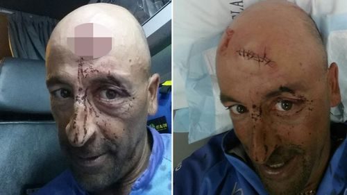 One passenger received stitches for his injuries. (AAP)