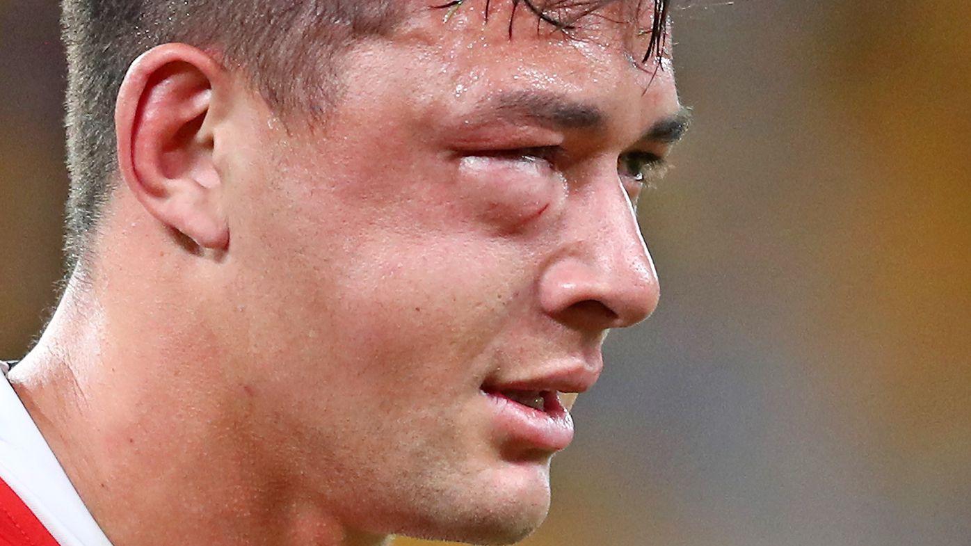 Joseph Manu sports a shocking injury from a high tackle by Latrell Mitchell