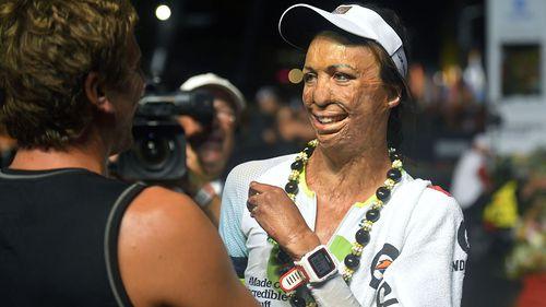 Turia Pitt gets a hug after finishing the Ironman World Championship Triathlon. (AAP)