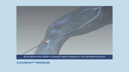 The procedure is much less invasive than surgery.