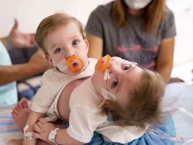 Michigan conjoined twins separated
